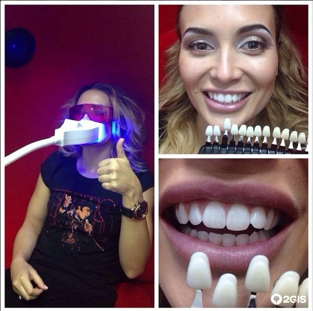 Отбеливание зубов мурманск